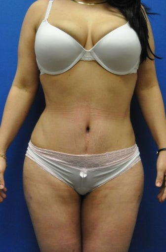 Hourglass Tummy Tuck by Dr. Wilberto Cortes after 954386