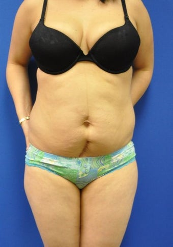 Hourglass Tummy Tuck by Dr. Wilberto Cortes before 954386