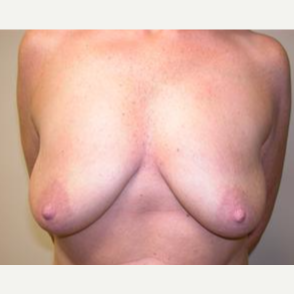25-34 year old woman treated with Breast Augmentation before 3378469