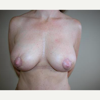 25-34 year old woman treated with Breast Augmentation after 3378469