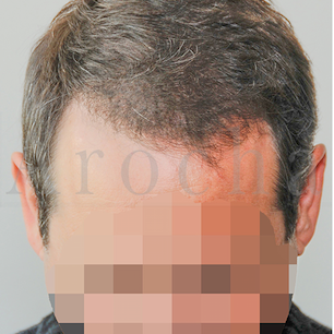 45-54 year old man treated with FUSS Hair Transplant after 3320364