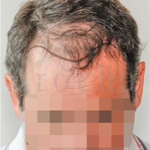 45-54 year old man treated with FUSS Hair Transplant before 3320364