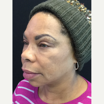 55-64 year old woman treated with Eyelid Surgery before 3218570