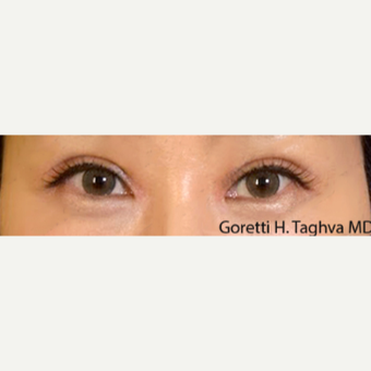 25-34 year old woman treated with Asian Upper Blepharoplasty and Medial Epicanthoplasty after 3611680