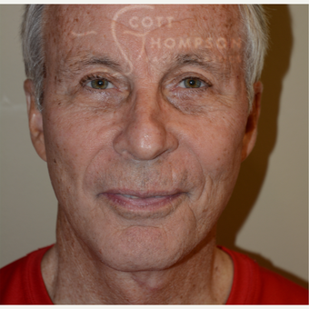 65-74 year old man treated with Facelift after 3321048