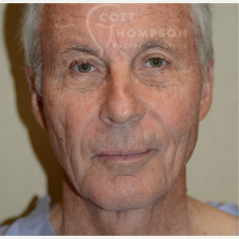 65-74 year old man treated with Facelift before 3321048