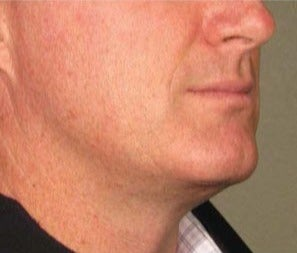 35-44 year old man treated with Ultherapy