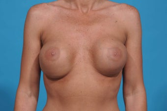 Breast Augmentation Revision 440cc Silicone Implant