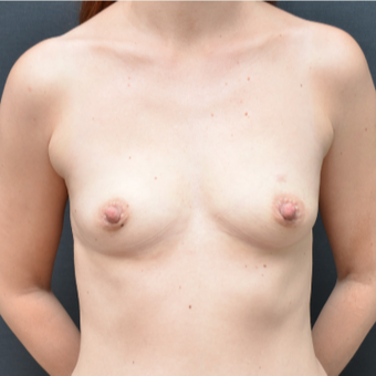 25-34 year old woman treated with Breast Augmentation before 3238762
