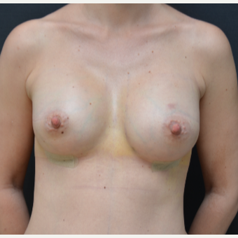 25-34 year old woman treated with Breast Augmentation after 3238762