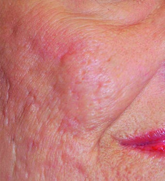 Fraxel Laser Acne Scars before 901955