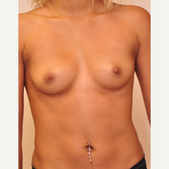 25-34 year old woman treated with Breast Implants before 3843110