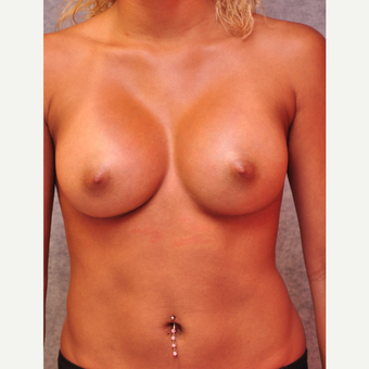 25-34 year old woman treated with Breast Implants after 3843110