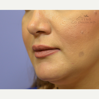 35-44 year old woman treated with Injectable Fillers after 3415951