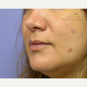 35-44 year old woman treated with Injectable Fillers before 3415951