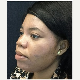 25-34 year old woman treated with Non Surgical Nose Job after 3219649