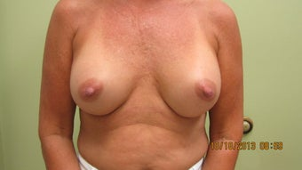 57 Year Old Gel Breast Augmentation after 1112381