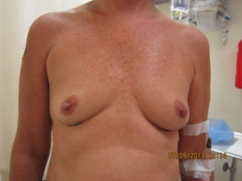57 Year Old Gel Breast Augmentation before 1112381