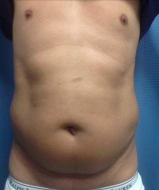 Liposuction of the abdomen on a 45 year old male, 45 days post-op. before 1316930