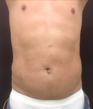 Liposuction of the abdomen on a 45 year old male, 45 days post-op. after 1316930