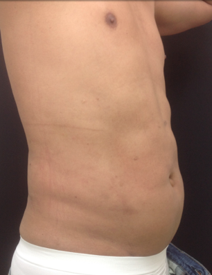 Liposuction of the abdomen on a 45 year old male, 45 days post-op. 1316930
