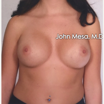 25-34 year old woman treated with Sientra Breast Implants after 3266827