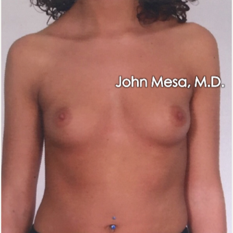 25-34 year old woman treated with Sientra Breast Implants before 3266827