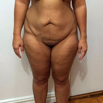 25-34 year old woman treated with Tummy Tuck before 2595899