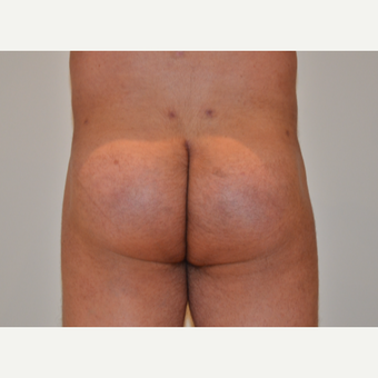 45-54 year old man treated with Butt Implants after 2857317