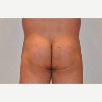 45-54 year old man treated with Butt Implants before 2857317