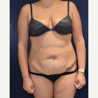 35-44 year old woman treated with Liposuction before 3489807