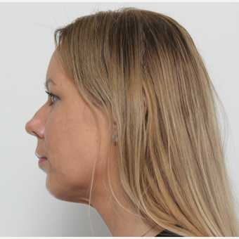 35-44 year old woman treated with Rhinoplasty before 3406138