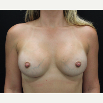 35-44 year old woman treated with Breast Augmentation after 3665244