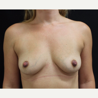 35-44 year old woman treated with Breast Augmentation before 3665244