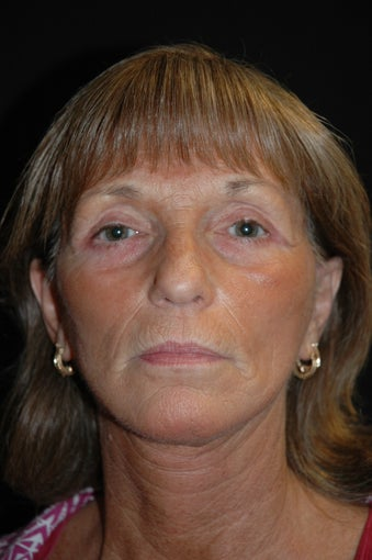 Face lift and upper/lower Blepharoplasty; eye lid surgery