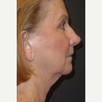 55-64 year old woman treated with Facelift Revision before 2220039