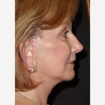 55-64 year old woman treated with Facelift Revision after 2220039