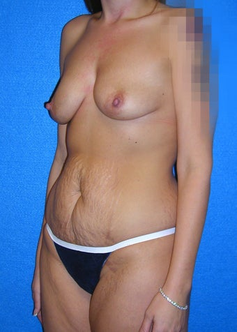 37 Year Old Female Mommy Makeover - Treated for Deflated Breasts, Loose Abdominal Skin & Stretched Abdominal Muscles 1219702