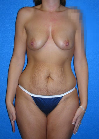 37 Year Old Female Mommy Makeover - Treated for Deflated Breasts, Loose Abdominal Skin & Stretched Abdominal Muscles before 1219702