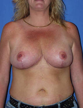 Breast Reduction Surgery after 1412012