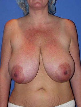 Breast Reduction Surgery before 1412012