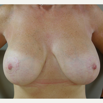 25-34 year old woman treated with Breast Lift with Implants after 3142627