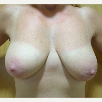 25-34 year old woman treated with Breast Lift with Implants before 3142627