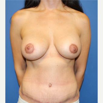 35-44 year old woman treated with Mommy Makeover after 3209170