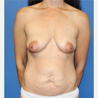 35-44 year old woman treated with Mommy Makeover before 3209170