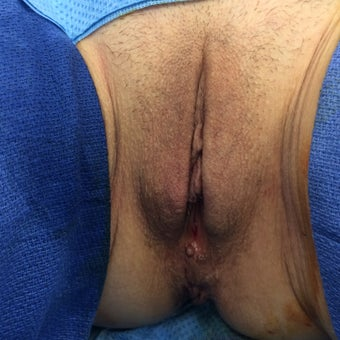 63 year old woman treated with Labiaplasty after 2314273