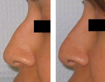 Non-surgical Nose Job before 1460219