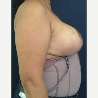 55 year old female treated with Breast Lift after 1740268