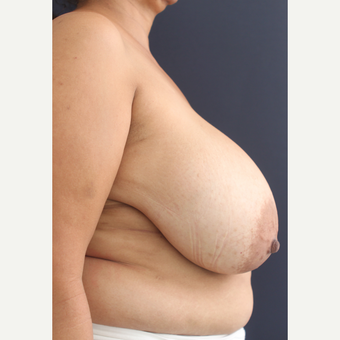 55 year old female treated with Breast Lift before 1740268