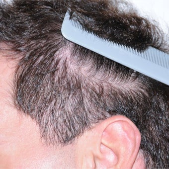 25-34 year old man treated with FUE Hair Transplant after 2437300